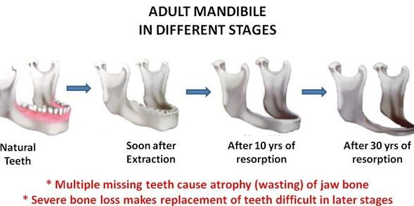 Adult mandible in different stages