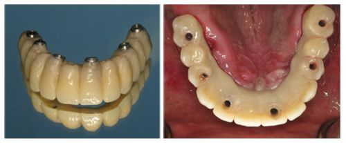 Dental implants are fixed in the jaw