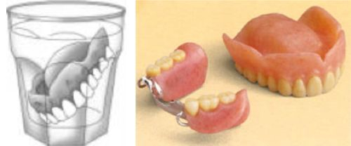 Dentures are Removable