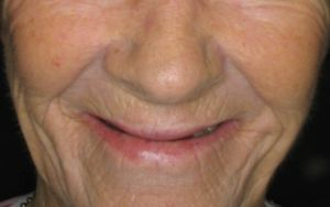 Dentures cause bone loss and sunken face