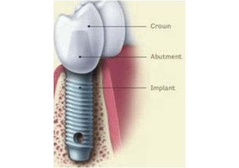 Implant Anatomy