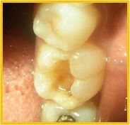 Complete Removal of Tooth Decay