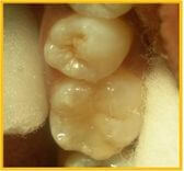 Tooth Coloured Composite Resin Restoration